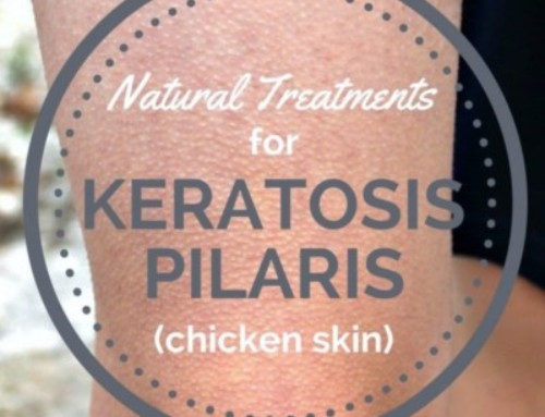 Treatment for Keratosis Pilaris AKA Chicken Skin